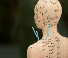 Alternative Medizin Akkupunktur Detail Makro Produktfotografie